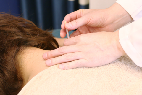 ライダル美容鍼がオススメです